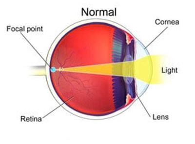 Kas yra tas astigmatizmas?