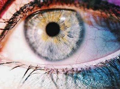 Raudonos akys ir paraudimo priežastys